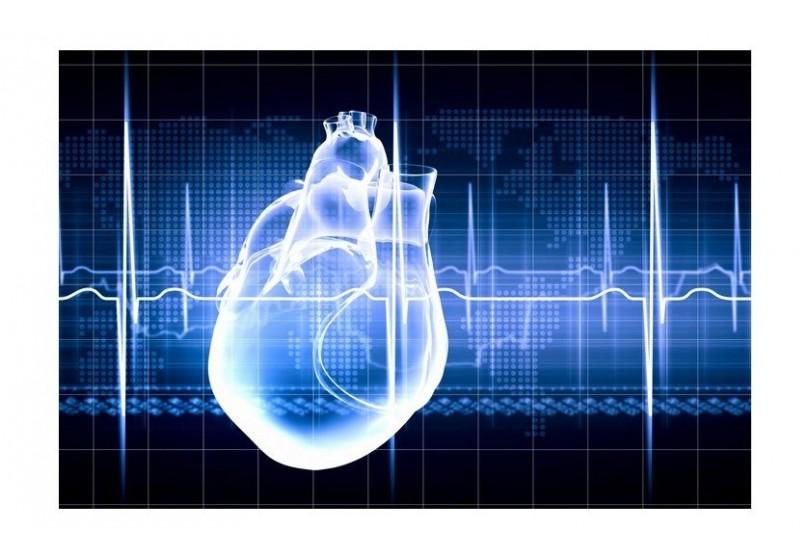 Arritmia cardíaca, la montaña rusa del corazón